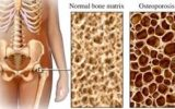 Nutrition has a greater impact on bone strength than exercise